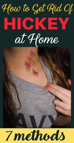 How to Get Rid of Hickey at Home With These 7 Methods! - Go Tips Get Rid Of Hickies, Health Remedies, Home Remedies, Health Routine, Health Guru, Improve Blood Circulation, Benefits Of Exercise, Healthy Exercise, Pregnancy Health