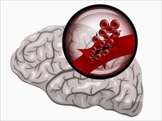 Rivaroxaban Not Superior to Aspirin for Recurrent Stroke After ESUS