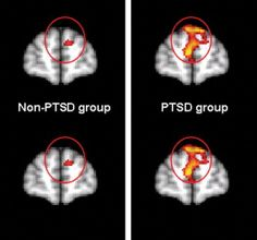 Here are a few photos of what PTSD does to a brain. Not my scan, I dont have a copy of it- yet. I didnt think to take a cell pic ...