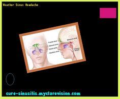 Weather Sinus Headache 093615 - Cure Sinusitis