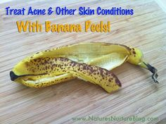 Treat acne and other skin condition with banana peels