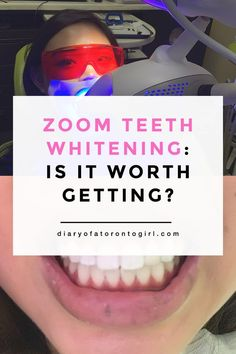 There are two methods that whiten teeth According to the American Dental Association whitening your teeth can be achieved in two different ways: Using A product that contains bleaching ingredients that change the color of the tooth by penetrating throug Teeth Whitening Procedure, Activated Charcoal Teeth Whitening, Home Teeth Whitening Kit, Natural Teeth Whitening, Toronto, Lifestyle Blog, Powder, Dental Hygienist, Dental Implants