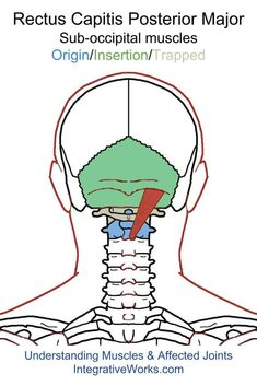 Understanding Trigger Points- Headache All Over Or In A Band Around The Head – akupressur punkte Tension Headache Relief, Migraine Relief, Neck Headache, Migraine Headache, Home Remedy For Headache, Natural Headache Remedies, Occipital Neuralgia, Neuralgia Symptoms, Physical Therapy