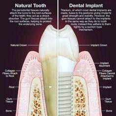 Natural Tooth vs Dental Implant #dentistry #implant #periodontics #periodoncia…