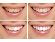 Smile Makeover – Changing the Look of a Person with Surgery
