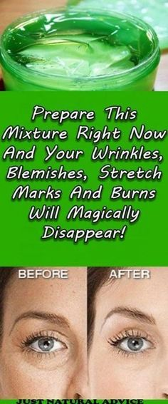 Prepare This Mixture Right Now And Your Wrinkles, Blemishes, Stretch Marks And Burns Will Magically Disappear! Prepare This Mixture Right Now And Your Wrinkles, Blemishes, Stretch Marks And Burns Will Magically Disappear! Beauty Care, Beauty Skin, Health And Beauty, Beauty Box, Beauty Makeup, Diy Beauty, Face Beauty, Homemade Beauty, Health Remedies