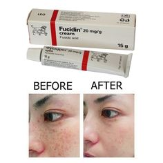We answer all your questions about Fucidin Cream! Beauty Care, Beauty Skin, Beauty Hacks, Health And Fitness Apps, Sensitive Skin Care, Skin Mask, Beauty Consultant, Tips & Tricks, Yoga Poses