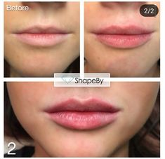microblading before and after Lip Injections Juvederm, Botox Lips, Botox Fillers, Lip Fillers, Perfect Lips, Marie Osmond, Hair Removal, Botox Before And After, Hyaluronic Acid Fillers