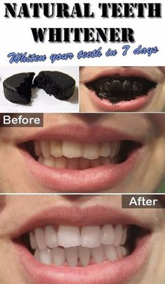 NATURAL TEETH WHITENER; whiten your teeth in 7 days – Home Exercises & Remedies