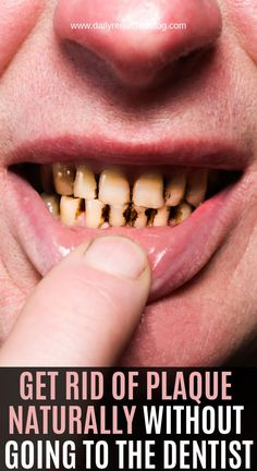 Get Rid Of Plaque Naturally Without Going To The Dentist! Health Remedies, Home Remedies, Coconut Benefits, Tomato Nutrition, Reduce Cholesterol, Dental Health, Oral Health, Teeth Health, Natural Cures