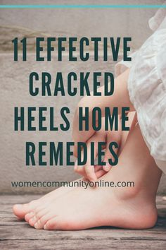 11 Effective Cracked Heels Home Remedies #crackheels #crackheelsolution #crackheelstreatment #crackheelsrepair #crackheelssolution #crackheelsnaturaltips What Causes Cracked Heels, Cracked Heel Remedies, Flaky Skin, Happy Relationships, Aloe Vera Gel, Skin Brightening, Medical Conditions, Getting Things Done