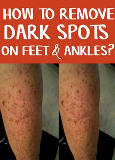 Remove dark spots on feet by Soak in your feet in the warm water for 5 to 10 minutes. Next, use steam exposed towel and use it on your feet. Keep it there for the same amount of time. You can use a cleanser or astringent to clean the area Diy Skin Care, Skin Care Tips, Dark Spots On Legs, Getting Rid Of Scars, Layers Of The Epidermis, Home Remedies For Skin, Skin Care Routine For 20s, Healthy Skin, Cleanser