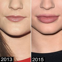 Kylie Jenner Chin