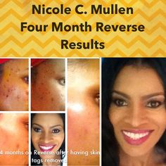 I'm a HUGE FAN of One of the greatest voices in Gospel Music in recent years. Nicole C. Mullen! She also happens to be a HUGE FAN of Rodan+Fields Dermatologists AND my Business Partner!! Nicoles regimen of choice is Reverse. She loves the product so much she decided recently to share her results. WOW!!!! Just look at Nicole's skin now! Ready to have the healthiest, most radiant skin of your life?! Maybe you're looking for your own plan B? No time like the present! Msg me…