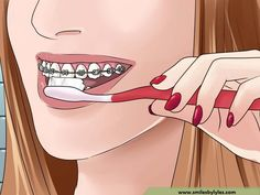 How to Take Care of Your Braces. When you get braces, your teeth and braces will require special care to keep them happy. For instance, you'll need to watch what you eat, as certain foods will harm your braces. You'll also need to brush. Braces Food, Dental Braces, Teeth Braces, Dental Surgery, Braces Tips, Teeth Whitening Procedure, Natural Teeth Whitening, Chronic Bad Breath, Brace Face