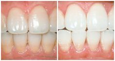 With this trick you get whiter teeth within five minutes - Dentistry Book Alternative Heilmethoden, Get Whiter Teeth, Cleaning Gloves, Wie Macht Man, Best Oral, White Teeth, Dentistry, Healthy Tips, Natural Skin Care