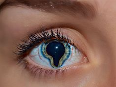 coloboma - Any defect in the iris that allows light to enter the eye, other than through the pupil, is called a coloboma. An extra hole or slit may be present from birth, or may result from trauma. Colobomas may also exist in the eyelid, a defect which interrupts the border of the eyelid.