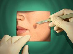 Treating Mohs Surgery #Skincancer Scars