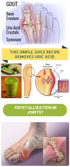 HOW THIS SIMPLE JUICE RECIPE REMOVES URIC ACID CRYSTALLIZATION IN JOINTS?