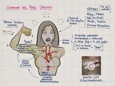 La Chuleta de Osler: Cardiología, Neurología, Cirugía Vascular - Sindrome del…