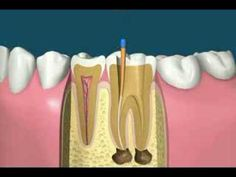 free4u2-sp-Filling a tooth