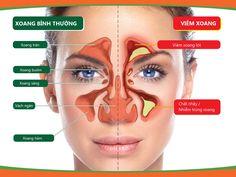 Tình trạng viêm xoang mũi ở nước ta ngày càng gia tăng. Vậy triệu chứng viêm xoang mũi và cách trị viêm xoang mũi là gì? Bài viết này suckhoes.com sẽ chia sẻ bí quyết điều trị viêm xoang đúng cách và hiệu quả nhất!