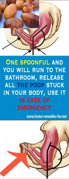 One spoonful and you will run to the bathroom, release all the #poop stuck in your body, use it in case of emergency #remedy #health #healthTip #remedies #beauty #healthy #fitness #homeremedy #homeremedies #homemade #trends #HomeMadeRemedies #Viral #healthyliving #healthtips #healthylifestyle #Homemade