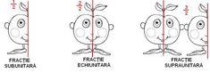 Matematica - Fractii (dificultati frecvente si solutii): Ghidul parintilor pentru clasa a iv-a - SuntParinte.ro Teaching, Comics, Words, Comic Book, Learning, Comic Books, Comic, Comic Strips, Cartoons