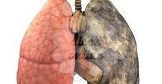 É ou foi fumante? Saiba como limpar seus pulmões!
