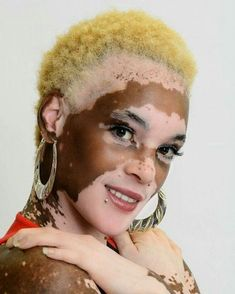 My beauty is in my difference! Black Is Beautiful, Beautiful People, Vitiligo Model, Amazing Photography, Portrait Photography, Vitiligo Treatment, Albinism, Unique Faces, My Beauty