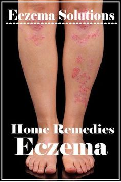 14 DIY Home Remedies for Eczema