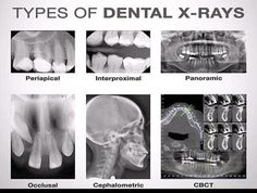 Are dental x-rays safe? Get the important facts about the radiation dose and safety of dental x-rays on simple charts. Routine dental x-rays are safe. Dental Assistant Study, Dental Hygiene Student, Dental Humor, Dental Procedures, Dental Hygienist, Dental Implants, Medical Students, Dentist Jokes, Nursing Students