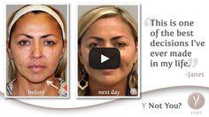 Bio lift facials scandal