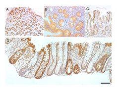Cytochrome c oxidase subunit I - Wikipedia, the free encyclopedia