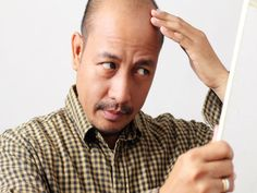 7 Things You Did Not Know About Hair Loss In Men - Boldsky.com