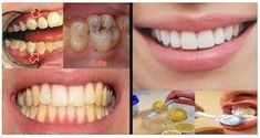 Tooth tartar herbal solution How yellowing passes- Tooth tartar herbal solution How to pass yellowing, # HERBAL # Solution # TOOTH # Passes # How - Oral Health, Dental Health, Drugstore Skincare, Astral Projection, Listerine, Oily Skin Care, Hygiene, Korean Skincare, Natural Treatments