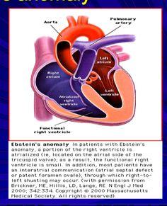 Congenital Heart Disease : Ebstein's Anomaly