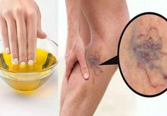 Get Rid of Varicose Veins Forever With The Use of One Simple Ingredient! Home Remedies For Hair, Hair Loss Remedies, Cypress Oil, Beauty Makeup Tips, Beauty Skin, Beauty Products, Beauty Hacks, Journals, Embroidery
