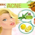 as papain, which can exfoliate the skin to fade dead cells. In addition, this fruit has the capacity to prevent tyrosinase, stopping production of melanin Home Remedies For Sunburn, Natural Home Remedies, Chicken Pox Scar Removal, Beauty Tips For Skin, Beauty Hacks, Getting Rid Of Freckles, Different Types Of Acne, Sunburn Relief, Acne Treatment