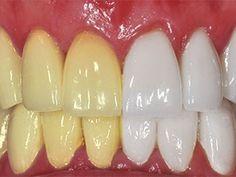 6. Zelfgemaakte tandpasta Sommige doe-het-zelf beauty professionals beweren dat er een simpel huishoudelijk product bestaat waarvan je prachtige witte tanden krijgt. Dat huishoudelijk middeltje is: kurkuma. Veel mensen maken nog steeds gebruik van tanden bleek producten. Maar krijg je echt waar je voor betaalt? Is het het waard om je tanden te beschadigen met al …