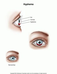 Summit Medical Group - Blood in the Front of the Eye (Hyphema)