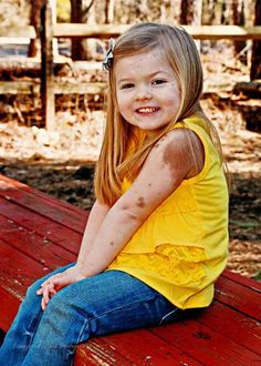 CMN syndrome is a rare disease where children are born with extensive birthmarks covering up to 80 per cent of the body surface.