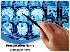34 best brain powerpoint templates human brain powerpoint template check out our professionally designed brain imaging ppt template download our brain toneelgroepblik Choice Image