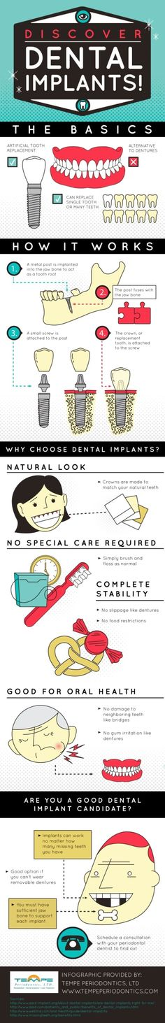 Dental implants are a good option for patients who can't wear removable dentures. Patients must have sufficient jaw bone to support each implant, though. Check out this Tempe dental procedures infographic to find more facts about dental implants.