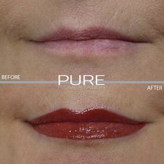 Enhancing natural beauty with permanent makeup, we all lead busy lives but everyone deserves to feel beautiful and confident from the minute they wake up! Permanent Lipstick, Permanent Makeup, Makeup Before And After, Busy Life, Free Makeup, How To Feel Beautiful, Smudging, Robin, Pure Products