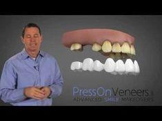 Cheap Dentures 12 dollar dentures (bridge) in about 1 hour (DIY… ot typically true! Teeth Implants, Dental Implants, Dental Hygienist, Dental Care, Smile Dental, Perfect Teeth, Perfect Smile, Beautiful Smile, Snap On Smile