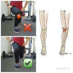 AFFONDO FRONTALE.  Per un corretto schema motorio il ginocchio non deve intraruotare pena sovraccarichi non fisiologici sul ginocchio.