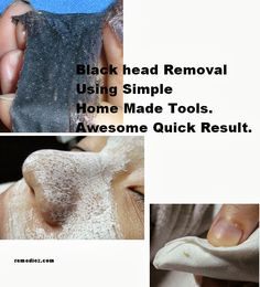 28 Different Working Methods for Removing Black Head , White Head and Tips ~ remediez