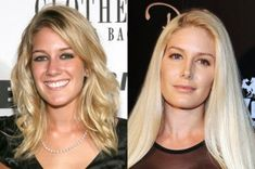 Perhaps the most unnecessary thing that Heidi Montag got was a nose job. Now she has a collapsed tip and it's way to too thin in the bridge. Jennifer Grey, Jennifer Aniston, Lip Job, Types Of Plastic Surgery, Nose Reshaping, Perfect Nose, Nose Shapes, Nose Surgery, Celebrities Before And After