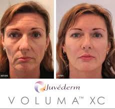 What is #JuvedermVoluma & are you a good candidate?  Juvederm voluma available at Winter Park Laser in Orlando www.winterparklaser.com